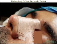 Rhinoplasty In Men,Rhinoplasty In Istanbul,Rhinoplasty In Turkey,