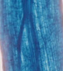 Gambar Penampang melintang akar yang tidak bermikoriza
