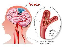 Tips Pengobatan untuk Stroke