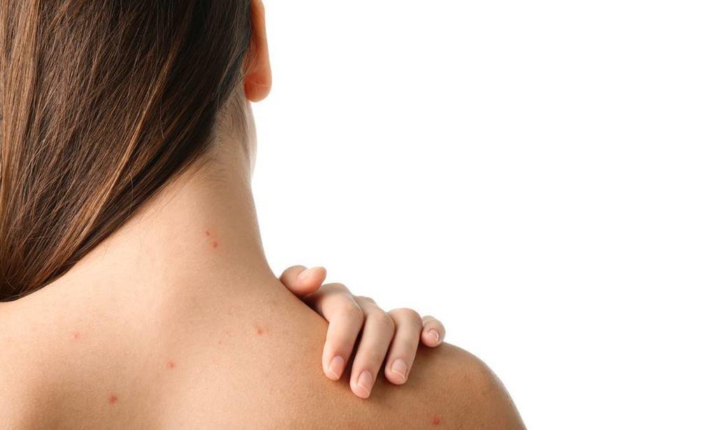 """Todo mundo que já enfrentou uma espinha e foi atrás de uma forma de tratar o problema já se deparou com a expressão """"Zona T"""". """"Chamamos assim pelo seu formato, em T, na face: afinal essa área compreende a testa, o nariz e o queixo. Ela concentra a maior quantidade de glândulas sebáceas do rosto. Então é por isso que esse local tem mais oleosidade e também sofre mais com a acne"""", afirma a dermatologista Dra. Paola Pomerantzeff, membro da Sociedade Brasileira de Dermatologia."""
