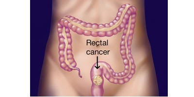 rectal cancer causes