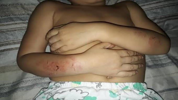 Homem foge ao agredir criança de três anos que chorava ao ver mãe apanhando