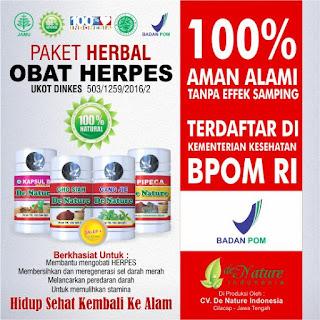 Cara Mengobati Penyakit Dampa Atau Herpes Dengan Obat Herbal Alami