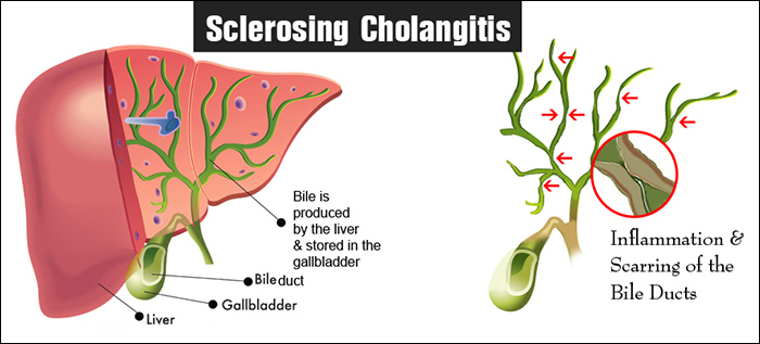 How Ayurveda can help in treating sclerosing cholangitis