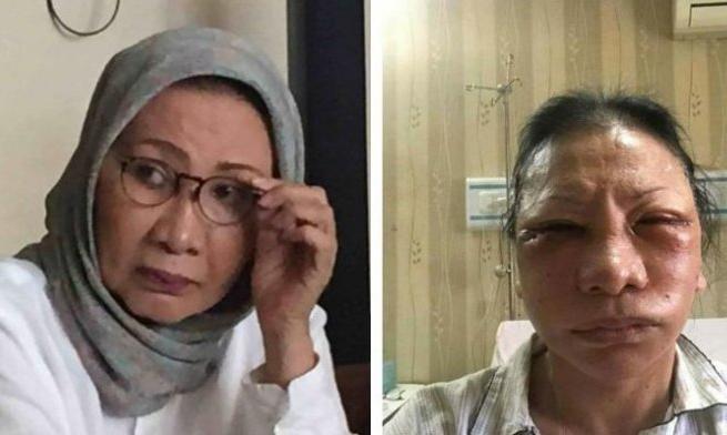 Kasus Ratna Sarumpaet, JPU Menuntut 6 Tahun Penjara | PerspektifRakyat