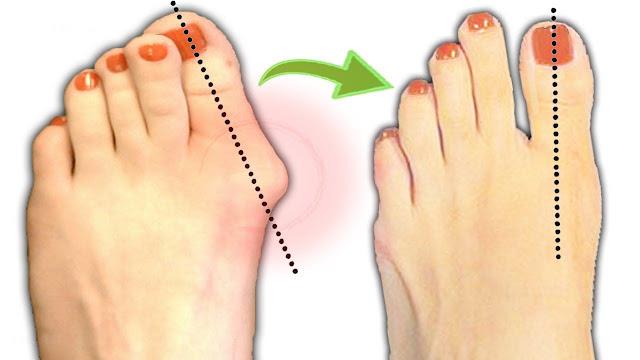 5 Remèdes naturels pour l'oignon au pied ou hallux valgus