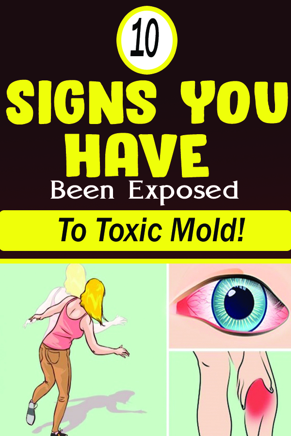 10 Signs You Have Been Exposed To Toxic Mold!