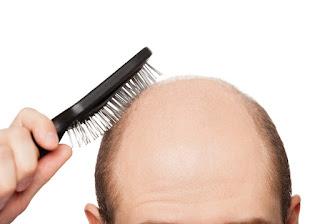 Mengulas 7 Bahan Penumbuh Rambut Alami yang Bisa Dipakai di Rumah, Tanpa Efek Samping yang Berbahaya