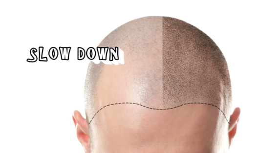 10 wrong habits that lead to baldness