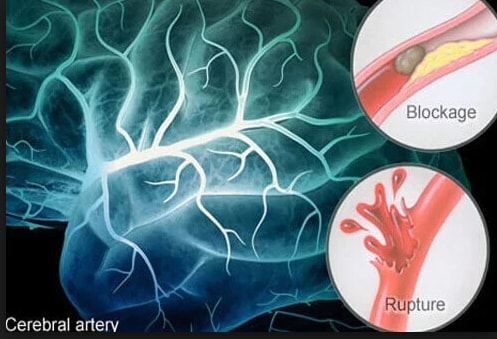 Symptoms Of Stroke In Women You Do Not Know