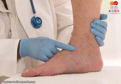 ماهى دوالى الساقين وكيفية علاجها بالليمون