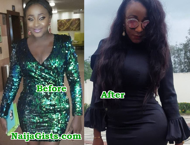 ini edo before after plastic surgery