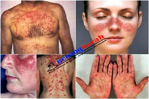 Awas! 'Lupus' Penyakit Berbahaya Mematikan
