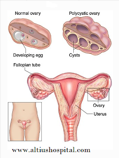 https://www.altiushospital.com/laparoscopic-procedures.html