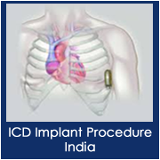 ICD Implantation in India