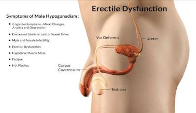 Erectile dysfunction & Vitamin D