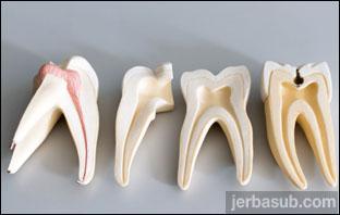 افضل دكتور جذور اسنان في الرياض