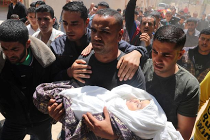 Nearly 2,000 Palestinians shot by Israeli military must be amputated