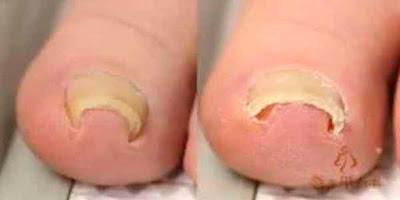 El hongo de las uñas en las manos la fase puesta en marcha