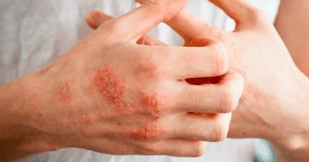 Remede-naturel-pour-eczema