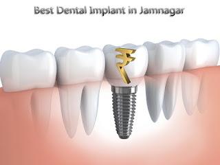 dental implant cost at jamnagar, gujarat india