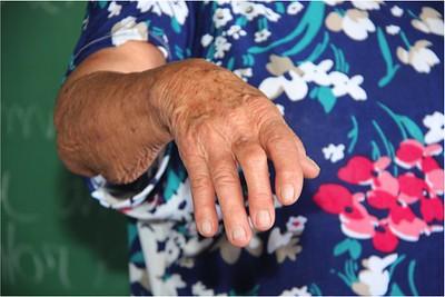 Download Makalah Konsep Askep Rheumatoid Arthritis Pada Lansia