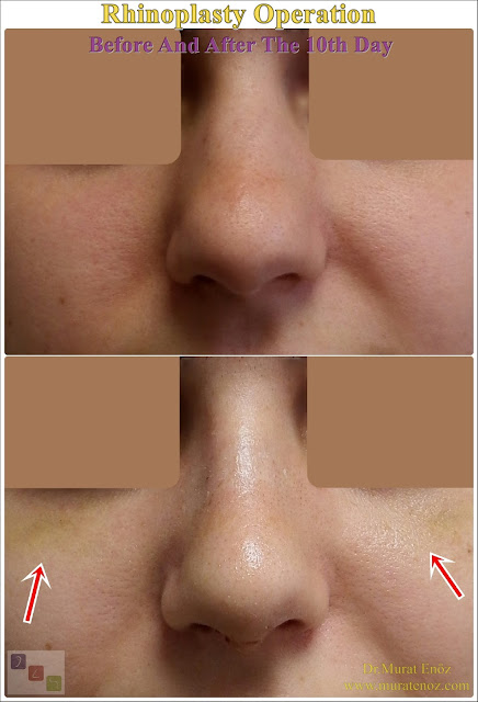 Nose job in İstanbul - Nose job in Turkey - Rhinoplasty In Istanbul - Rhinoplasty In Turkey - Nose aesthetic surgery in İstanbul - Nose aesthetic surgery in Turkey - Nose job İstanbul - Nose job Turkey - Natural looking rhinoplasty - Difficulties of the nose job surgery - Nose reshaping surgery in İstanbul - Nose reshaping surgery in Turkey - Nose aesthetic (rhinoplasty) İstanbul - Bruism after rhinoplasty - Bruism after nose job - Swelling after rhinoplasty - Swelling after nose job