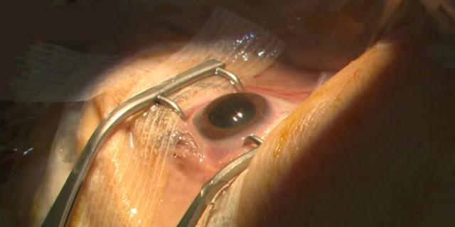 Marina Carrère d'Encausse et Antoine Piau expliquent la cataracte