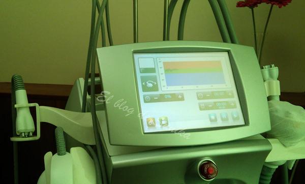 tratamiento de radifrecuencia