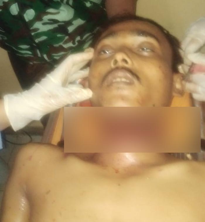 Lelaki Tanpa Identitas Ditemukan Warga Bukitkemuning Dalam Kondisi Dogorok Lehernya