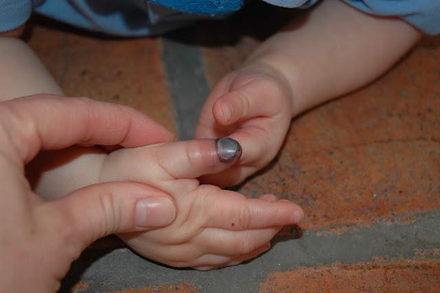 Acidente na escola. O que fazer quando a criança prende o dedo?