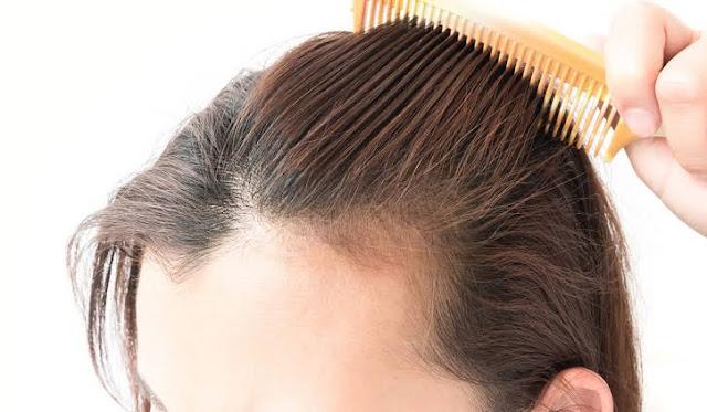 الأدوية اللازمة لعلاج تساقط الشعر لدى النساء