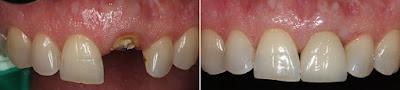 Dento Hub Dental Implant | Dr. Jyoti sachdeva