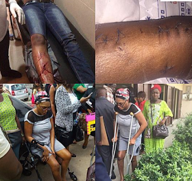 OMG!!! PAINFUL DETAILS OF HOW ZENITH BANK STAFF BRUTALIZED AND SHATTERED WIFE'S LEGS – (GRAPHIC PHOTOS)