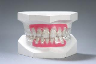 Niềng răng clear aligner tốn bao nhiêu tiền?