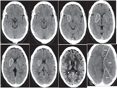 ct brain perfusion