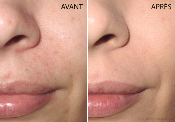 Fond Teint Skin Lift Rodial Avis Revue Avant Après