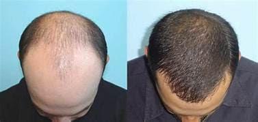 تكلفة زراعة الشعر وكل ما تريد معرفته