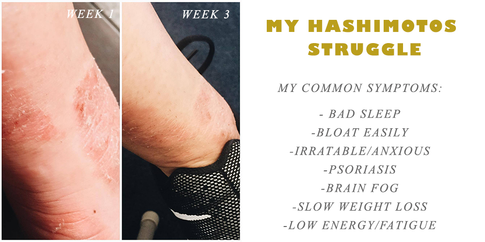 hashimotos symptoms