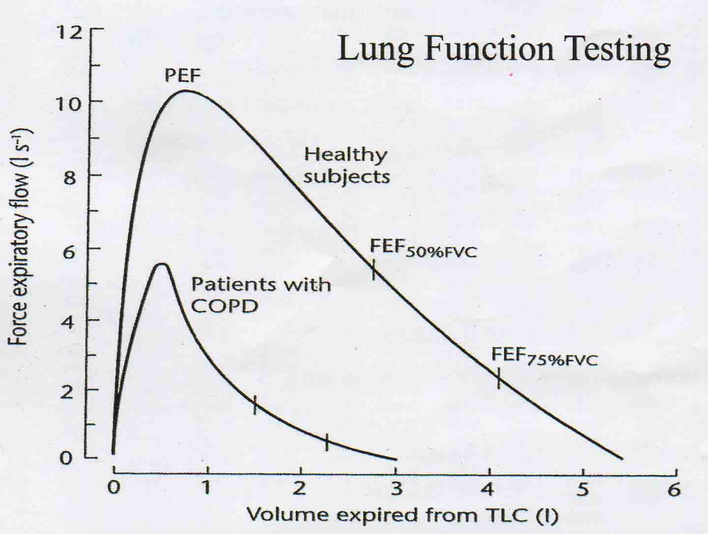 Cpt Code For Pulmonary Function Test