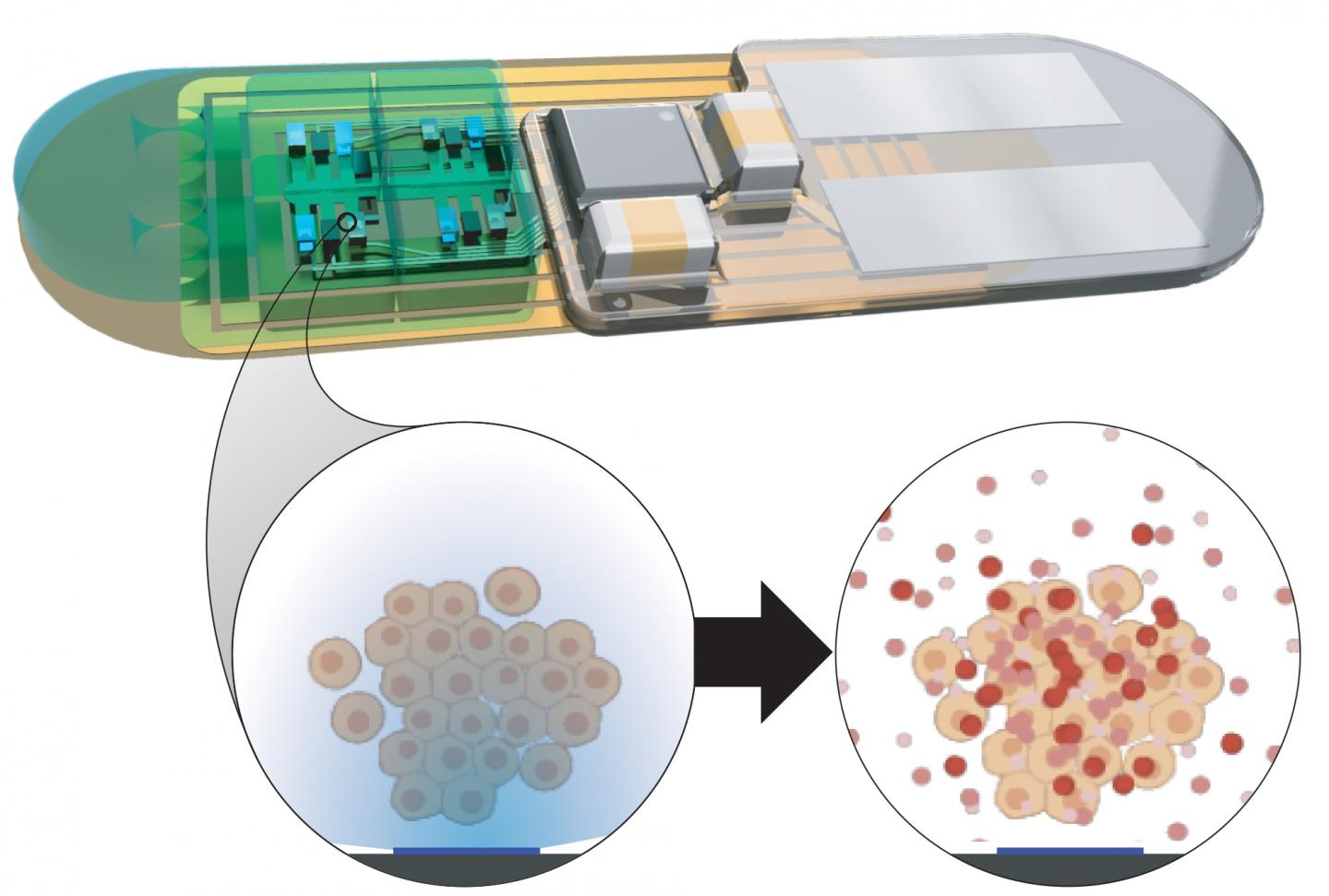 Implantable Bioelectronic To Control Body's Seep/Wake Cycles