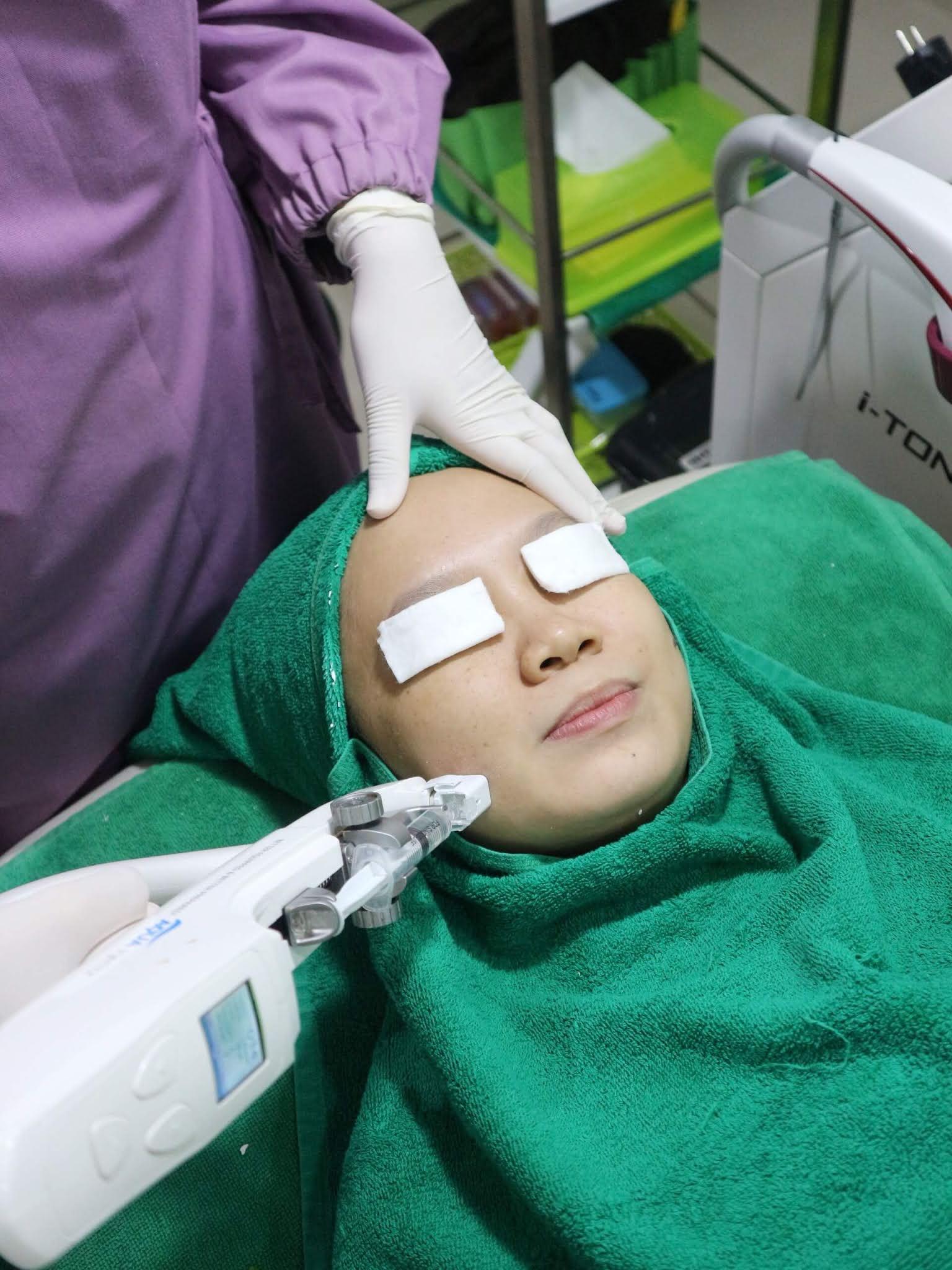 Perawatan Mesotherapy di Azqiara Klinik