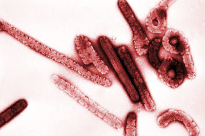 7 Virus Paling Mematikan di Dunia