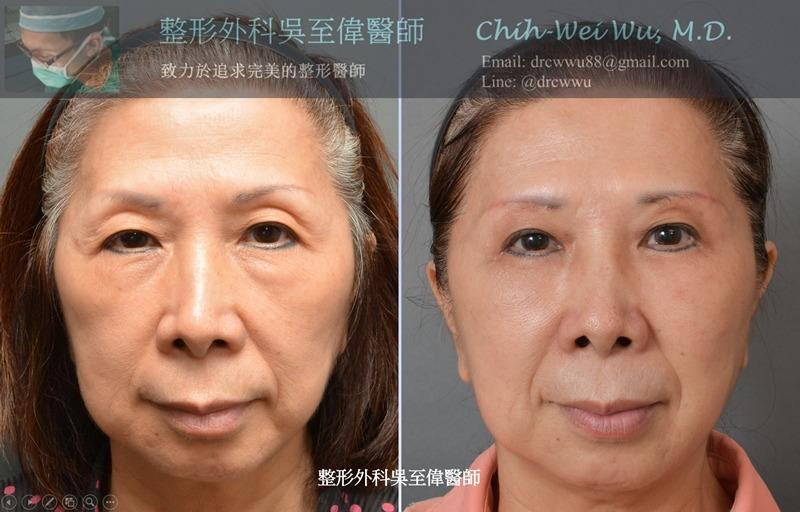 2019年9月最新眼袋手術案例,手術方式:內開無痕眼袋+修皮+自體脂肪補上眼窩與淚溝,可以見到眼週細紋,上眼窩,眼袋,淚溝都明顯改善,整個人年輕許多(眼袋權威吳至偉醫師)