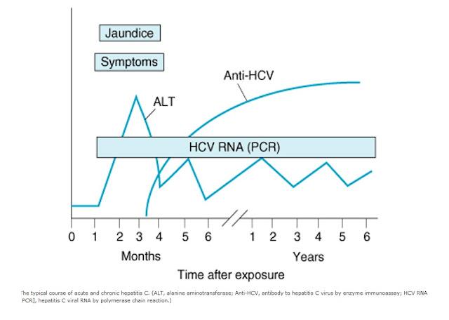 Kurva Diagram perjalanan manifestasi klinis laboratoris penyakit hepatitis C jumlah antibodi terhadap waktu HCV RNA PCR Jaundice gejala symptoms Anti-HCV, polymerase chain reaction, bulanan, tahunan, tahun