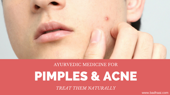 Ayurvedic Medicine To Treat Pimples And Acne Naturally