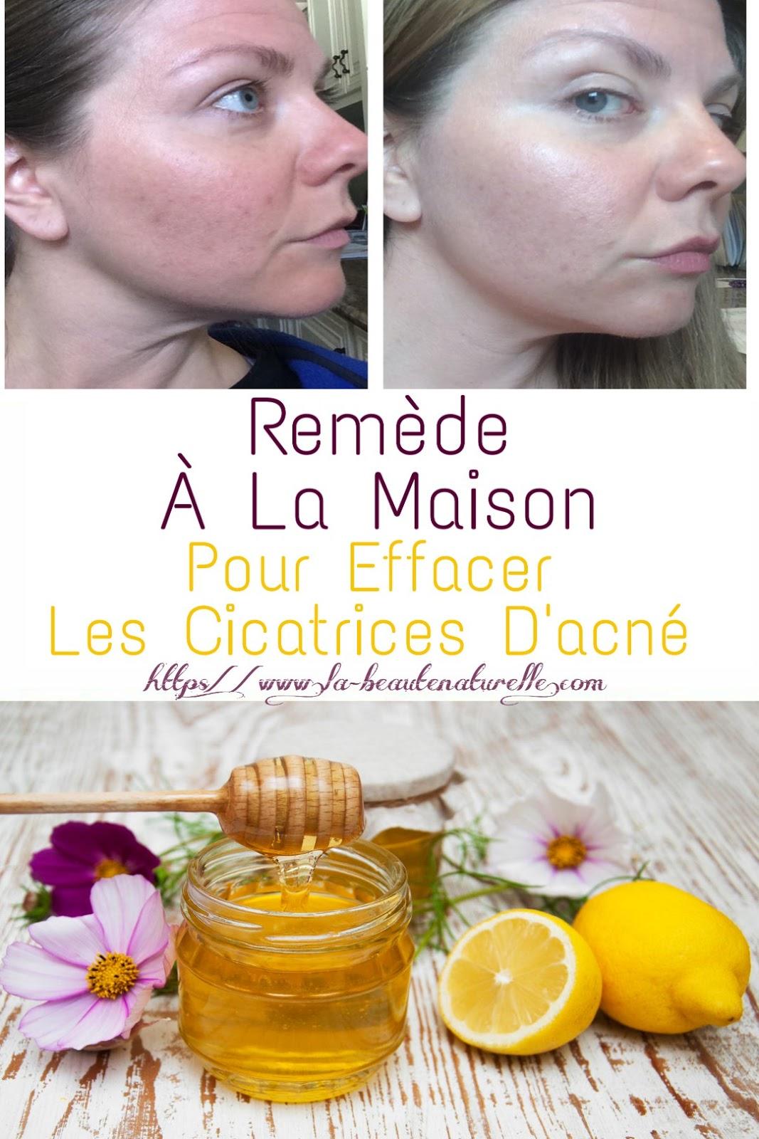 Remède À La Maison Pour Effacer Les Cicatrices D'acné