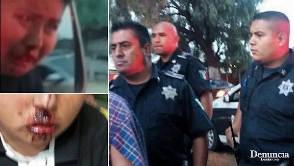 Policías AGREDEN a familia donde un menor resulta herido, y todo por que no se dejaron extorsionar con mil pesos