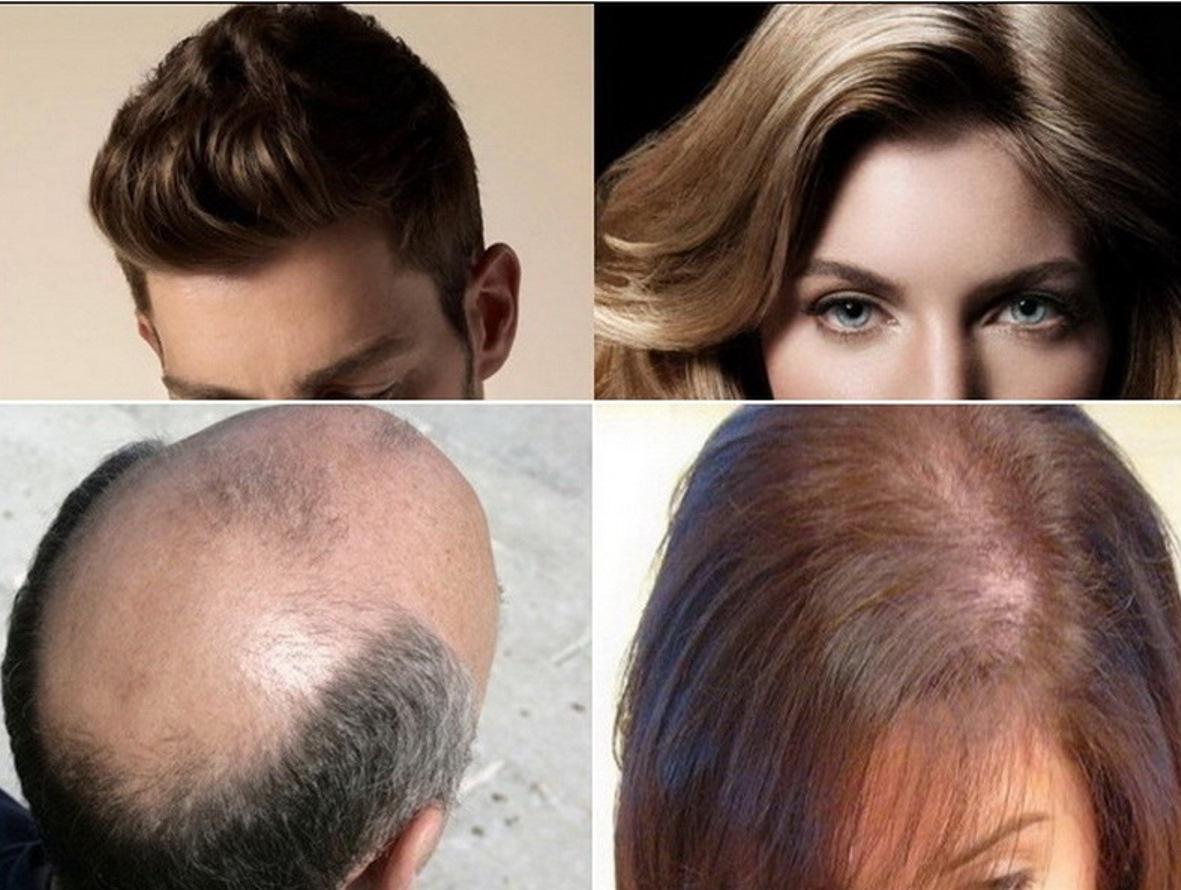 Tips Merawat Tubuh Tetap Sehat Cara Menebalkan Rambut Tipis Secara Alami