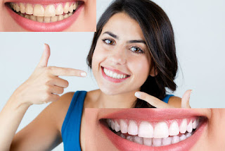 Top Tow simple method for Teeth Whitening Everyone should know